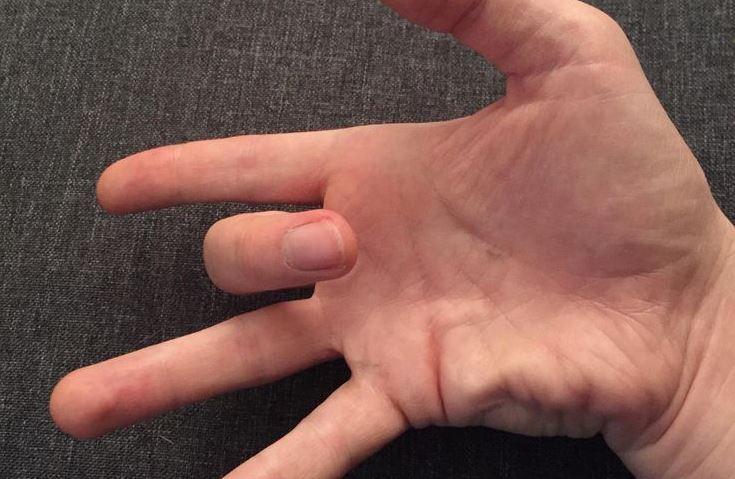 Comment soigner naturellement un doigt ressaut ? |